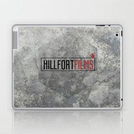 Hillfort Films goes Hexagon Laptop & iPad Skin