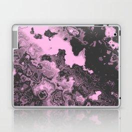 NOISE VIII - (Noise Pattern Series) Laptop & iPad Skin