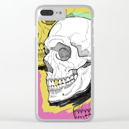 Gold Tooth Clear iPhone Case