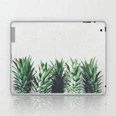 Pineapple Leaves Laptop & iPad Skin