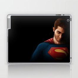 SuperHoech Laptop & iPad Skin