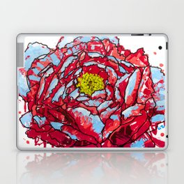 Aqua Blasted Peony Laptop & iPad Skin