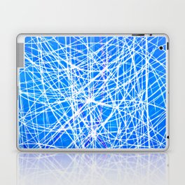 Intranet Laptop & iPad Skin