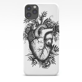 Stitched up anatomical heart iPhone Case