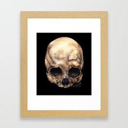 Alas, Poor Yorick! Framed Art Print
