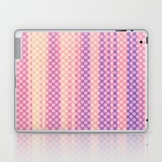 Spotty! Dotty!  Laptop & iPad Skin