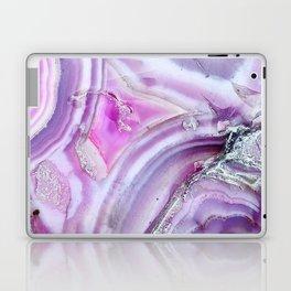 Sparklehorse Laptop & iPad Skin