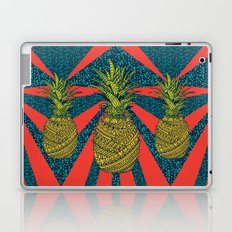 Pineapple wrap |color| Laptop & iPad Skin