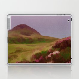 Connemara Ireland Travel Poster Vintage Style Laptop & iPad Skin