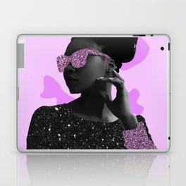 Rock Star Glitter Collage Laptop & iPad Skin