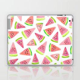 Watermelons! Laptop & iPad Skin