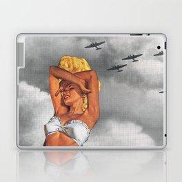 War L'Amour Laptop & iPad Skin