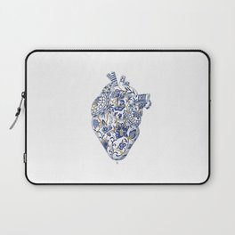 Broken heart - kintsugi Laptop Sleeve