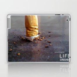 Smoking Kills Laptop & iPad Skin