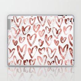 Rose Gold Love Hearts on Marble Laptop & iPad Skin