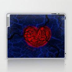 Overgrown Heart Laptop & iPad Skin