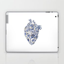 Broken heart - kintsugi Laptop & iPad Skin