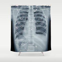 Situs Inversus Shower Curtain