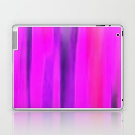 Density Laptop & iPad Skin