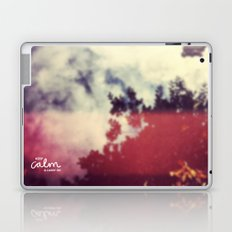 Keep Calm & Carry On Laptop & iPad Skin