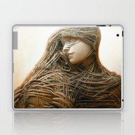 Attachment II Laptop & iPad Skin