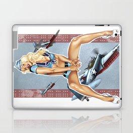 WWII Nose Art - Candyman Laptop & iPad Skin