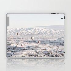 Air Balloons #society6 #art #buyart Laptop & iPad Skin