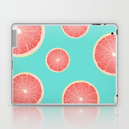 Tart Party Laptop & iPad Skin