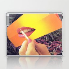 Pleasure Correlation Upgrade Laptop & iPad Skin