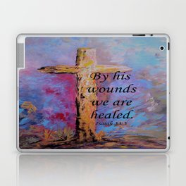 By His Wounds We Are Healed Laptop & iPad Skin