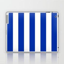 International Klein Blue - solid color - white vertical lines pattern Laptop & iPad Skin