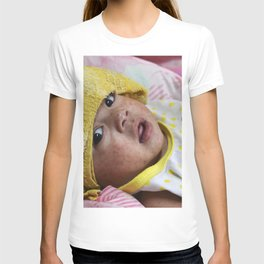 An infant in a hospital with measles (rubeola) T-shirt