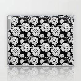 50's Lace Laptop & iPad Skin