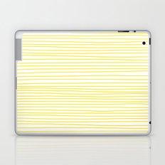 Yellow Lines dancing striped Laptop & iPad Skin