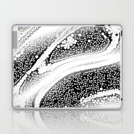 bone marrow Laptop & iPad Skin