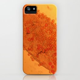 Dirus mal ar iPhone Case
