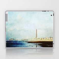 On The Front Textured Fine Art Photograpy Laptop & iPad Skin
