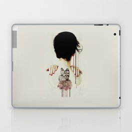 Backage Laptop & iPad Skin