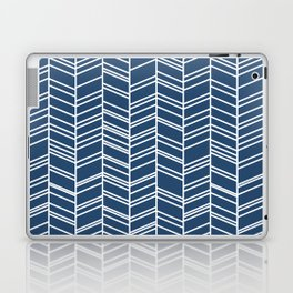Navy Herringbone Laptop & iPad Skin