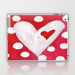 Polka Dot Heart Laptop & iPad Skin