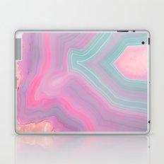 Agate Summer Texture Laptop & iPad Skin