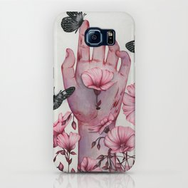 It Aches II iPhone Case