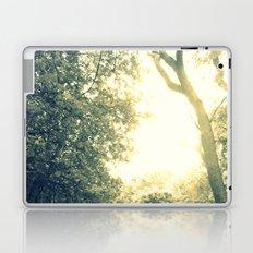 Light Coated Laptop & iPad Skin