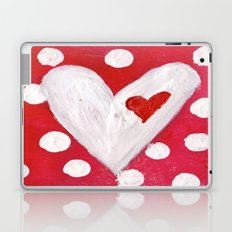 Polka Dot Heart Laptop & iPad Skin