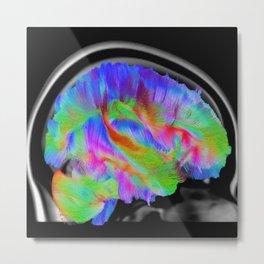 Brains in Color Metal Print