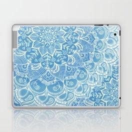 Blueberry Lace Laptop & iPad Skin