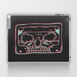 Rock Cassette (Black) Laptop & iPad Skin