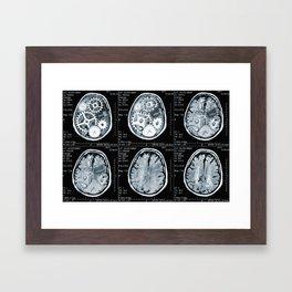 brain scan Framed Art Print