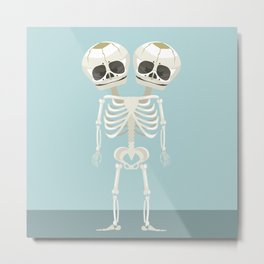 Siamese Twins Skeleton Metal Print