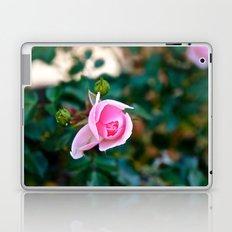 Pink Kiss Laptop & iPad Skin